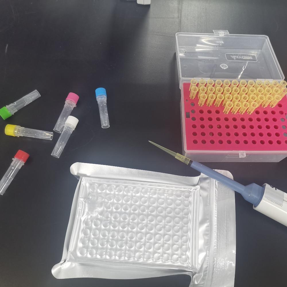 睿信生物 人抗双链DNA抗体IgG(dsDNA-IgG)elisa试剂盒