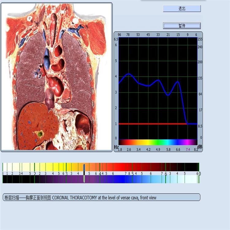 人体智能健康检测仪 9D-cell亚健康智能检测仪生产加工 产品寿命长